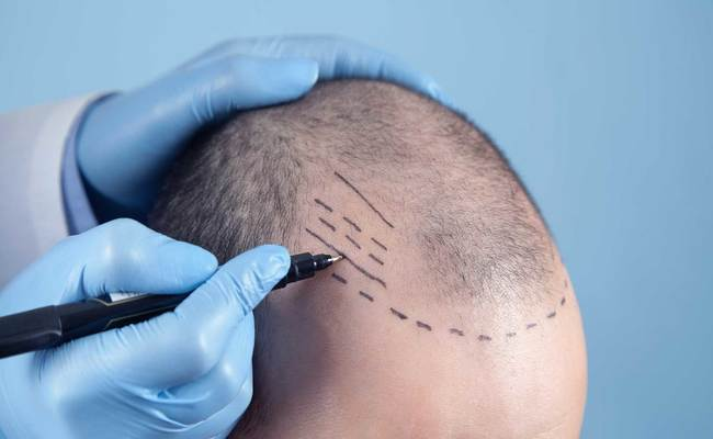 Which Is The Best Hair Transplant Method For You